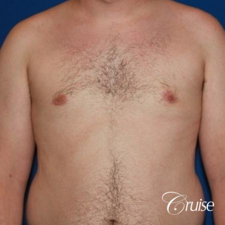 asymmetric gynecomastia moderate -  After Image 1