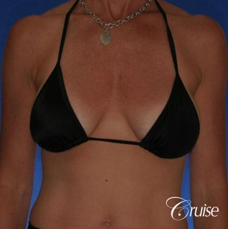 Best breast revision for low implants - Before Image 4