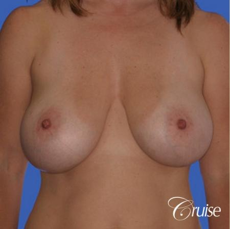 best saline breast reduction - Before Image 1