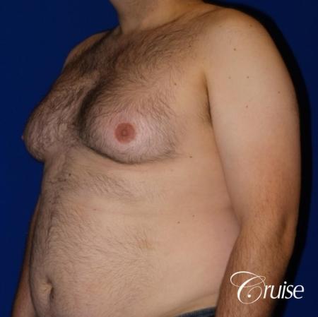 Severe Gynecomastia- Free nipple Graft  - Before Image 2