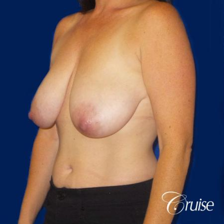 Breast Reduction No Implants - Before Image 2