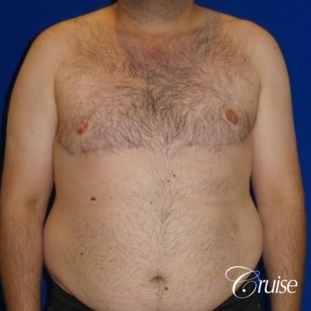 Severe Gynecomastia- Free nipple Graft  - After Image 1