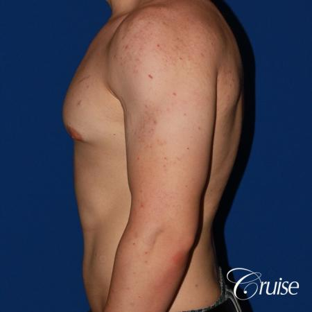 mild-gynecomastia-revision - Before Image 2