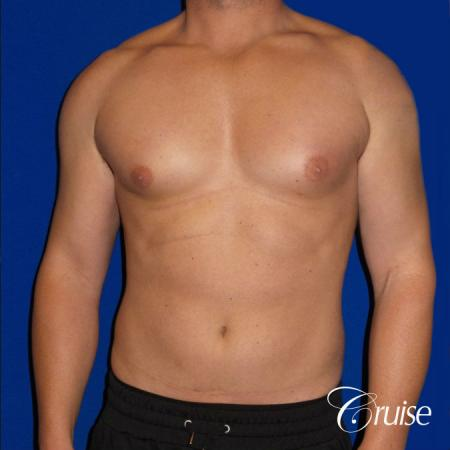 Gynecomastia puffy nipples cost - Before Image