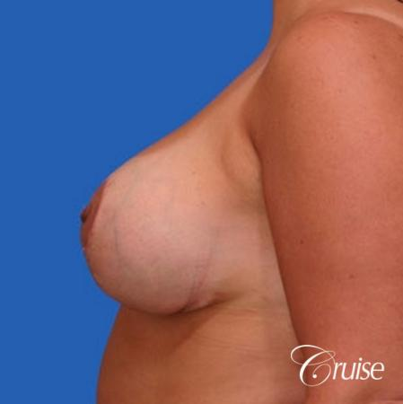 before and after pictures of saline breast lift -  After Image 2