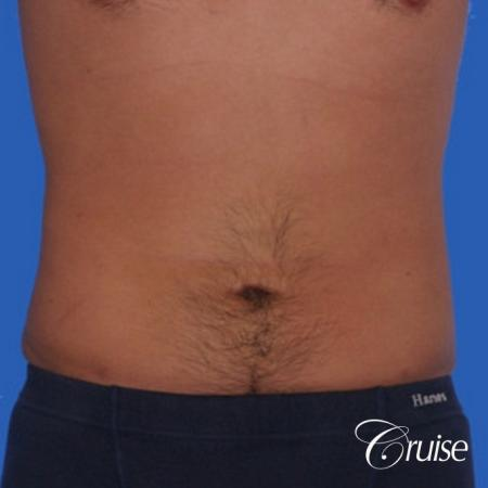 best liposuction to contour a males body -  After Image 1