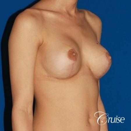 best breast lift revision with moderate profile silicone implants -  After 4