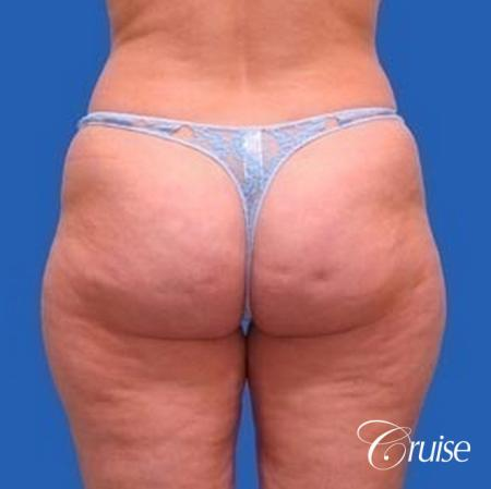 best liposuction abdomen, flanks and thighs - Before and After Image 3