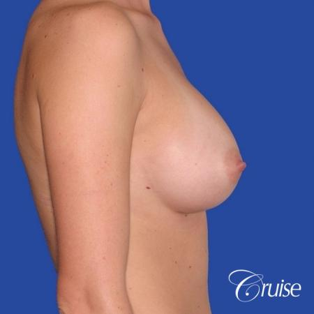 best pictures of breast revision for capsular contracture - Before Image 2