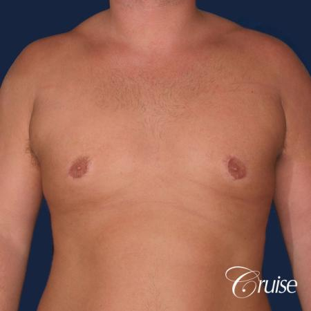 donut lift Gynecomastia correction -  After Image 1