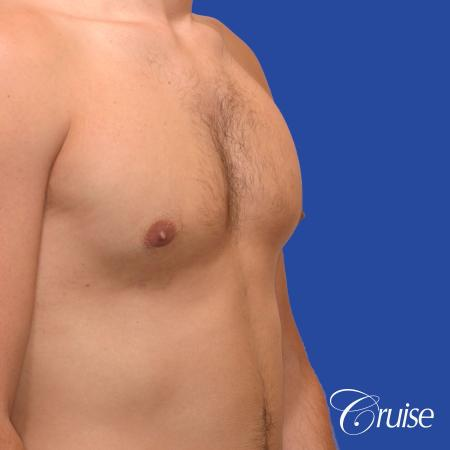 24 yr old body builder mild gynecomastia -  After Image 3
