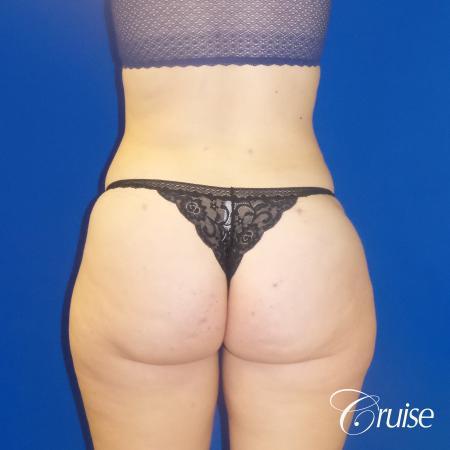 Liposuction Flanks & Abdomen - After Image 2_2