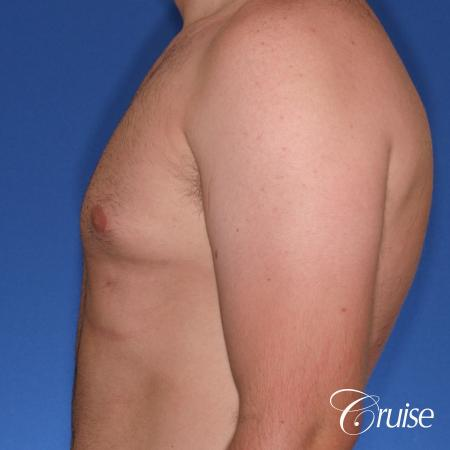 best Puffy nipple correction and gynecomastia on young adult - After Image 2