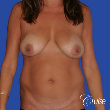 mommy makeover with best breast lift anchor with saline implants - Before Image 1