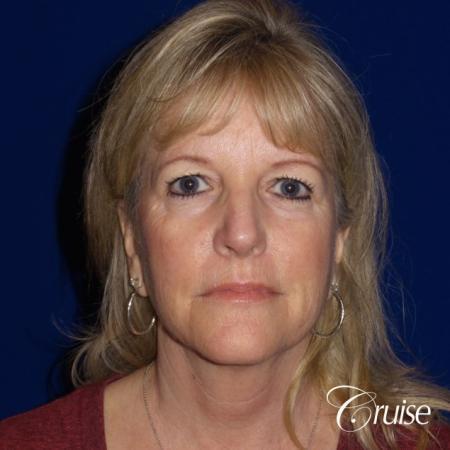 Face Lift surgery Newport Beach Orange County - Before Image