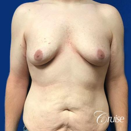 Pedicle incision Dr. Cruise Newport Beach CA - Before Image 1