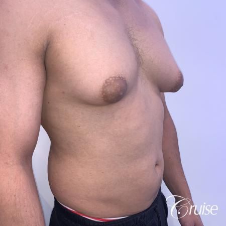 gynecomastia surgery - Before and After 5