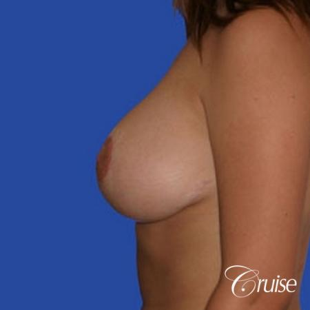 best 19 yr old breast reduction results -  After Image 2