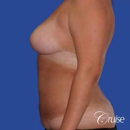best before and after of liposuction abdomen, flanks, and upper back -  After Image 2
