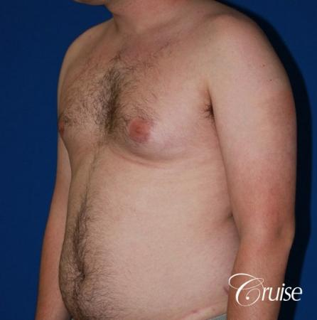 asymmetric gynecomastia moderate - Before Image 2