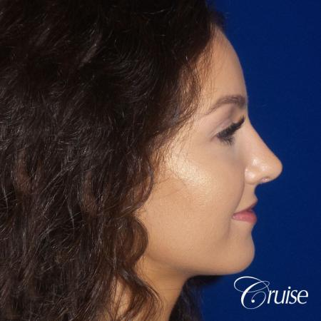 Rhinoplasty Dr. Cruise newport beach -  After Image 3