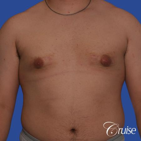 best scars for moderate gynecomastia - Before Image 1