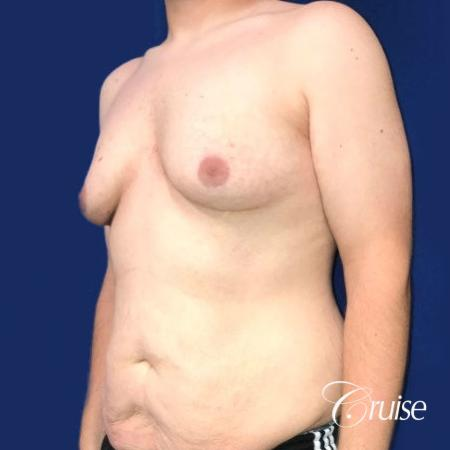 Pedicle incision Dr. Cruise Newport Beach CA - Before Image 3