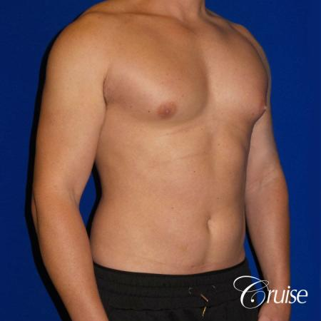 Gynecomastia puffy nipples cost - Before Image 2