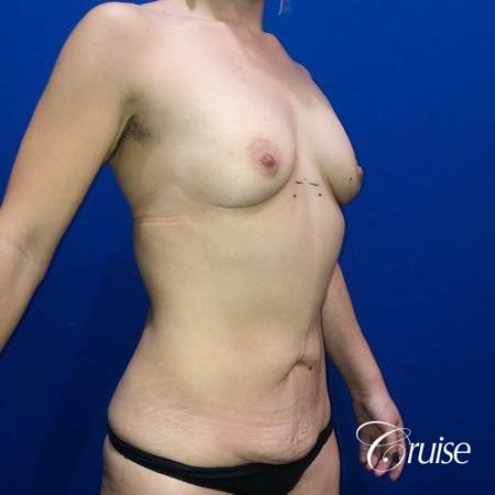 Breast Augmentation, Tummy Tuck - Before Image 3