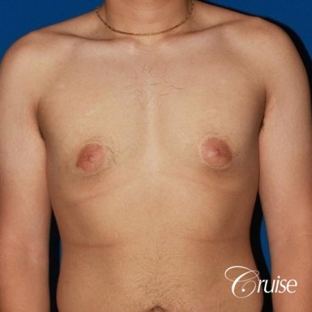 puffy nipple male breast on young adult - Before Image 1