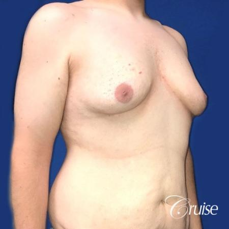Pedicle incision Dr. Cruise Newport Beach CA - Before Image 5