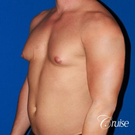body builder with Gynecomastia puffy nipple - Before Image 3