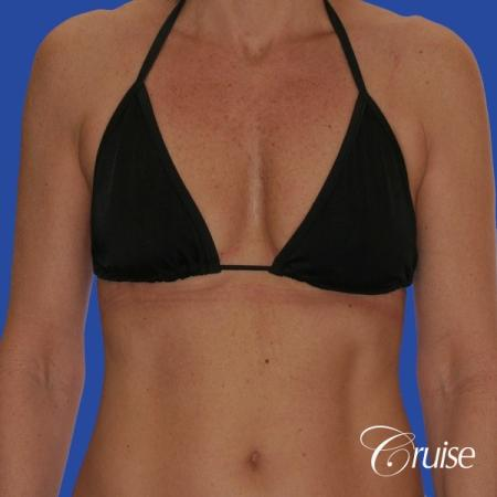 breast lift anchor with silicone implants on adult - Before Image 4