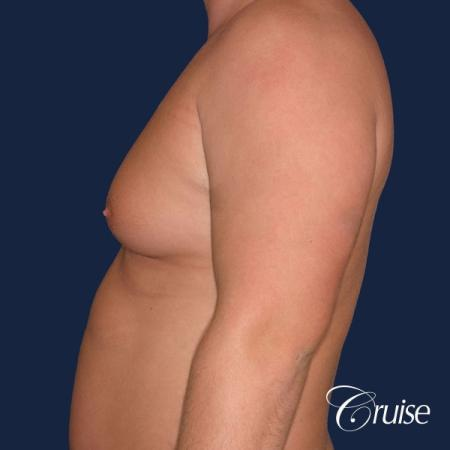 donut lift Gynecomastia correction -  After Image 2