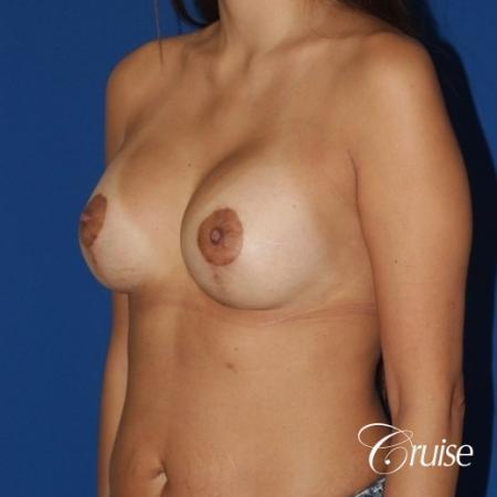 best breast lift anchor with high profile silicone 425cc -  After Image 3