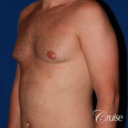 best puffy nipple surgery correction - Before Image 3