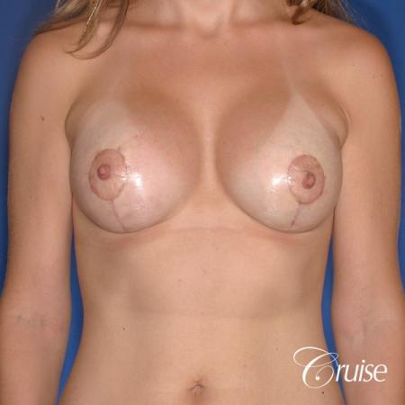 best results for breast lift lollipop with silicone implants -  After 1
