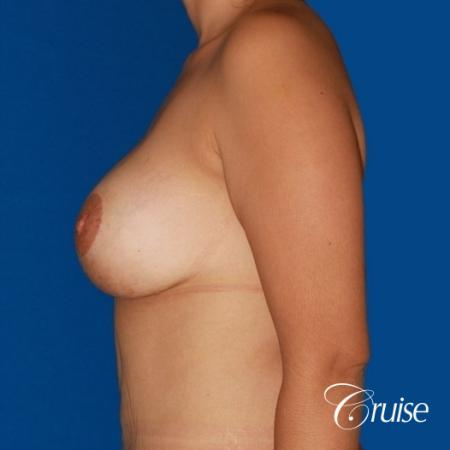 best breast lift anchor by top plastic surgeon in Newport Beach -  After Image 2