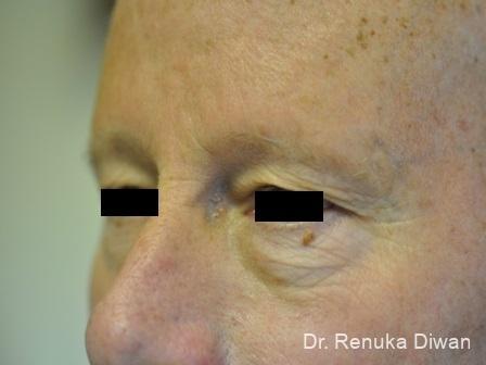 Blepharoplasty-for-men: Patient 2 - Before Image