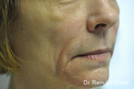 Smile Lines: Patient 2 - Before Image 2