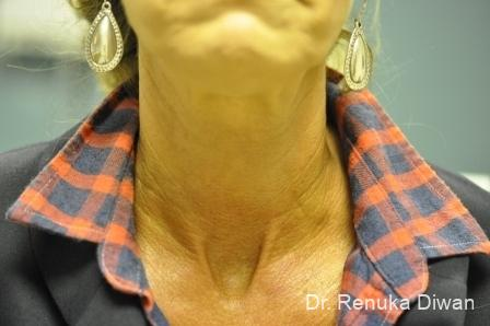 Neck Creases: Patient 2 - After Image 2