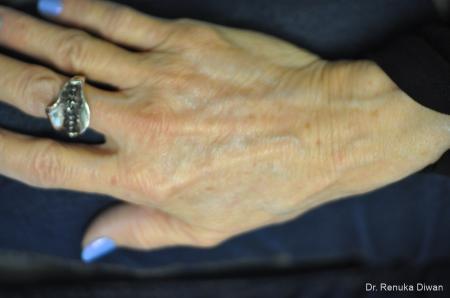 Hand Augmentation: Patient 3 - After Image