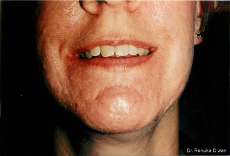 Acne Scars: Patient 2 - After Image 1