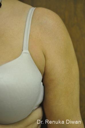 Liposuction: Patient 17 - Before Image 1