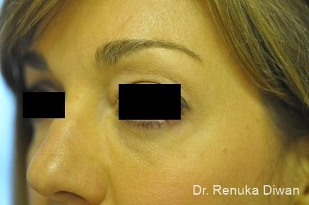 Dark Circles: Patient 2 - After Image 1