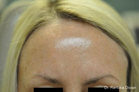 BOTOX® Cosmetic: Patient 9 - After Image 1