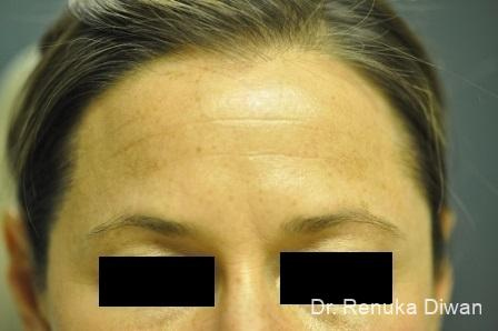 BOTOX® Cosmetic: Patient 14 - Before Image 1