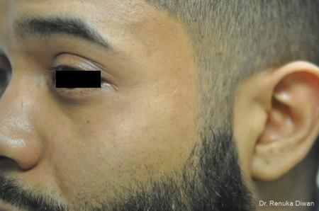Acne Scars For Men: Patient 1 - After Image 2