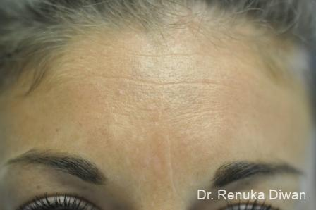 Forehead Creases: Patient 5 - Before Image