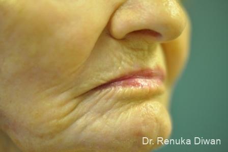 Laser Skin Resurfacing: Patient 11 - After Image 1